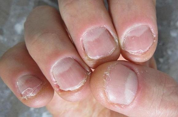 Các kẽ tay khi bị cắn sẽ bị tổn thương dẫn đến viêm nhiễm, làm mủ thậm chí thối rửa ngón tay.
