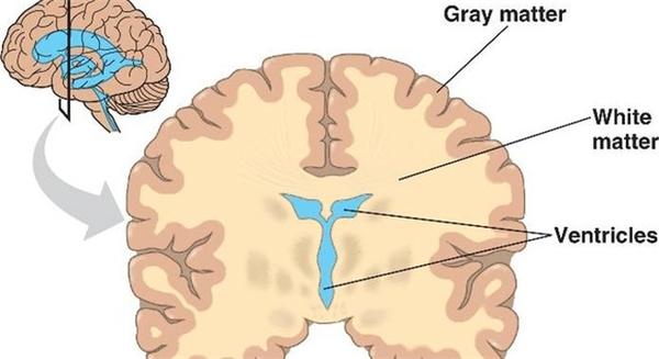 Ảnh minh họa chất xám và chất trắng trong não.
