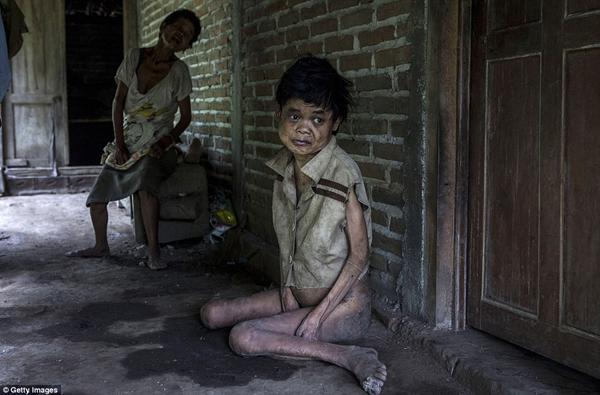 Sinem, một bệnh nhân Down tại làng Krebet, Jambon, ngồi trên sàn nhà dơ bẩn, ướt át. (Ảnh: Daily Mail)