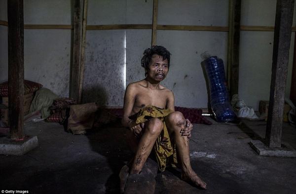 Saimun bị bố mẹ trói chân dưới nền nhà suốt 20 năm qua. (Ảnh: Daily Mail)