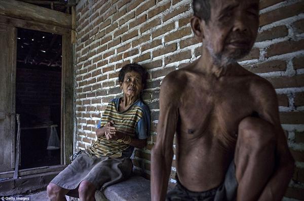 Anh em ông Saremon và Legi đều bị bệnh Down và đều bị xích. (Ảnh: Daily Mail)