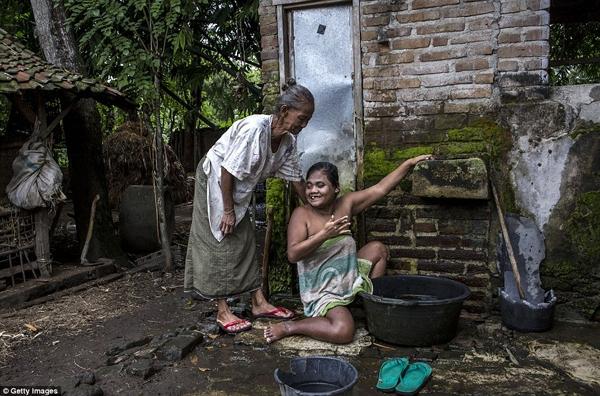 Người phụ nữ 39 tuổi này hàng ngày vẫn được mẹ già tắm rửa. (Ảnh: Daily Mail)