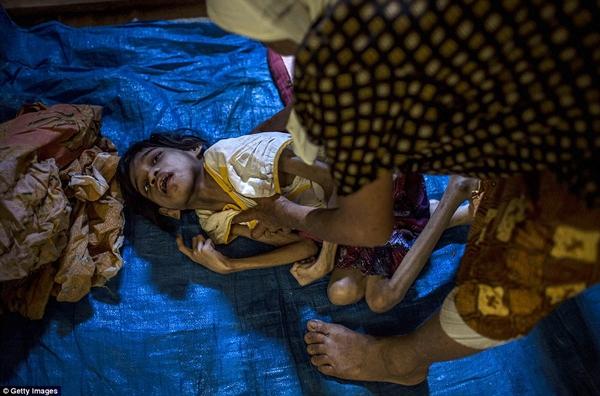 Những đứa trẻ bị mắc bệnh Down giống như cô bé Jamila này là rất nhiều ở Indonesia. (Ảnh: Daily Mail)