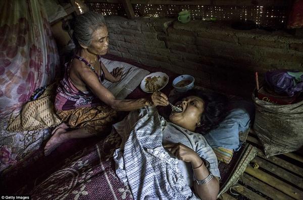 …bố mẹ họ vẫn phải lo thêm từng miếng ăn giấc ngủ cho những đứa con đáng thương này. (Ảnh: Daily Mail)