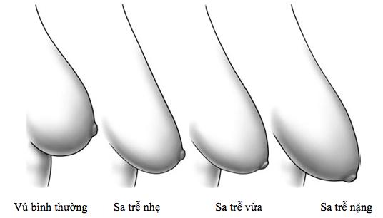 Hút thuốc lá và thường gặp stress có thể khiến ngực bị chảy xệ. (Ảnh: Internet)