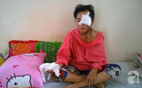 Chị Nguyễn Thị Thu Hàbịchồng tạt axit trước mặt con. (Ảnh: Internet)