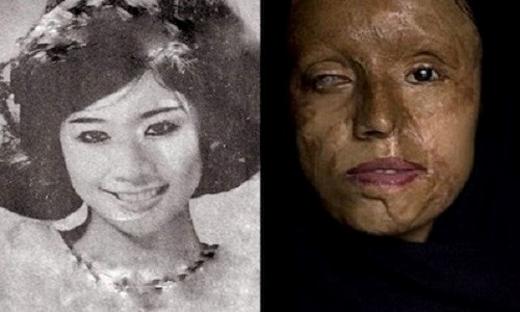 Cẩm Nhung, vũ nữ nức tiếng Sài Gòn một thời và nhan sắc tàn phai sau khi bị tạt axit.(Ảnh: Internet)