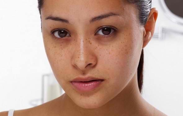 Nếu xuất hiện những đường viền đậm phía dưới mắt, bạn cần xem lại đã uống đủ lượng nước cần thiết mỗi ngày hay chưa. (Ảnh: Internet)