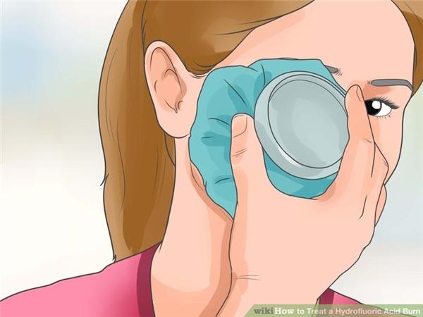 Sau khi rửa sạch axit ở mắt, cần chườm đá lạnh vào mắt để làm giảm tác hại của axit cũng như giảm đau.