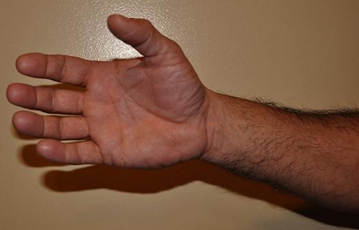 Bàn tay với các ngón có chiều dài tương xứng và các gò nổi lên tròn đều, đầy dặn (Ảnh: Internet)