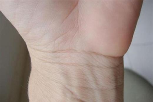 Đường cổ tay dài, sâu, không đứt đoạn(Ảnh: Internet)