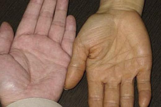 Vàng da không phải bệnh mà nó là một biểu hiện lâm sàng của suy giảm chức năng gan. (Ảnh: Internet)