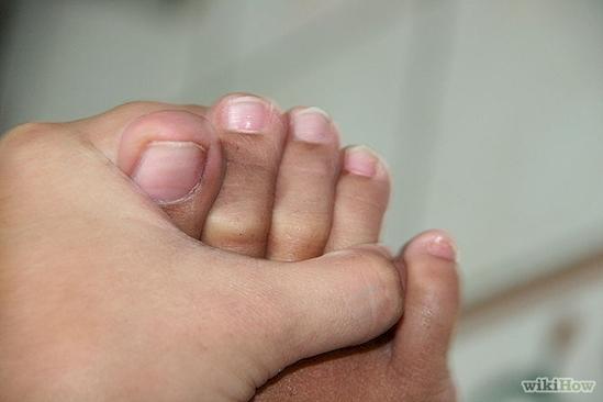 Bạn phải dùng tay mới tách ngón chân út ra được. (Ảnh: Internet)