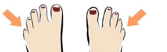 Ngón chân út hơi lật sang bên. (Ảnh: Internet)