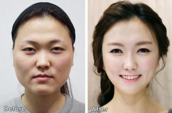 Phẫu thuật thẩm mỹ giúp nhiều người có được gương mặt xinh xắn.