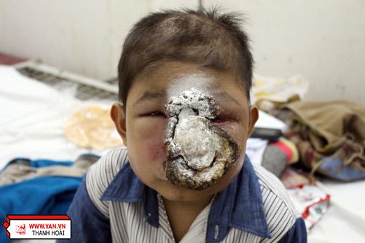 Người mẹ đau đớn trước gương mặt bị ăn mòn từng ngày của con trai