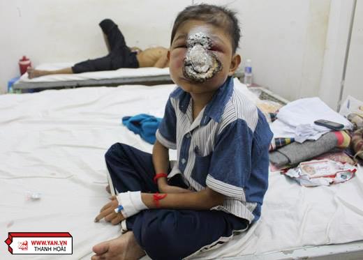 Em Huỳnh Ly Trương (12 tuổi) đang bị căn bệnh ung thư ăn mòn khuôn mặt.
