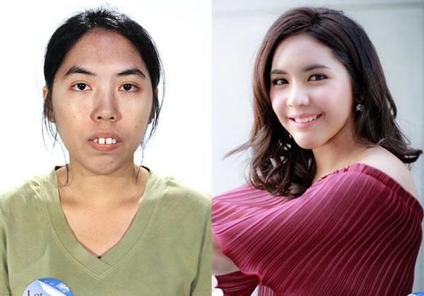 Cô gái 23 tuổi Wongtawan LinPanuprateepchia sẻ trước đây cô từng bị từ chối ở rất nhiều vị trí tuyển dụng chỉ vì quá xấu. Sau khi tham gia Let Me In Thailand, Lin đã lột xác và trở thành một người xinh đẹp hơn rất nhiều lần.