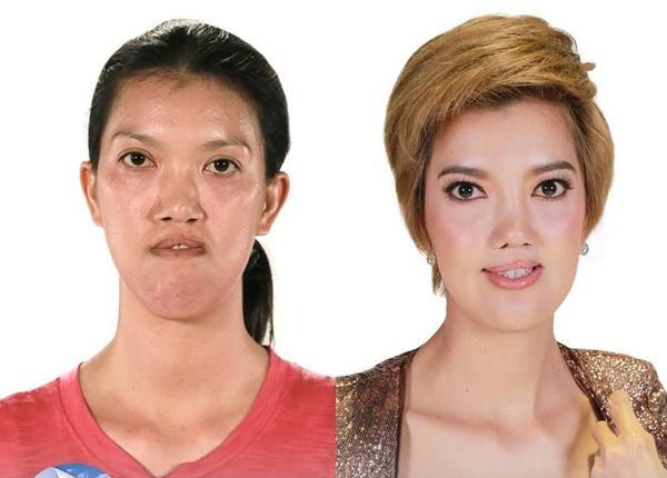 """Gương mặt củaWaleerat """"Eff"""" Komanaket đã cải thiệnrất nhiều sau phẫu thuật. Từ một người sứt môi, Elf trở thành cô gái có ngoại hình ưa nhìn hơn sau khi tham gia Let Me In Thailand."""