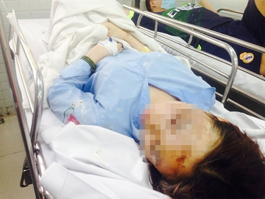 Nữ sinh bị tạt axít hy vọng mắt trái sẽ hồi phục trở lại để đi học. (Ảnh: Khánh Trung)