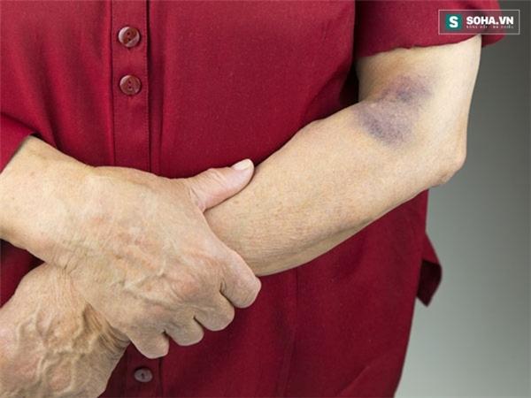 Vết bầm tím bất thường trên da cảnh báo nhiều bệnh nguy hiểm