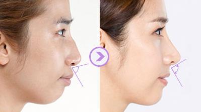 Đầu sống mũi phần gần mắt nhất sẽ bị lõm nhẹ 2 bên.
