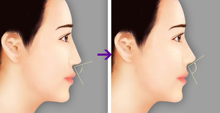 Sống mũi sửa thường rất dốc.