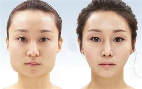 Mũi đã sửa có đầu mũi bóng hơn da thường khi chiếu dưới ánh đèn. Lỗ mũi bị méo, khi cười dáng đầu mũi không thay đổi vì sự cố định của silicone.