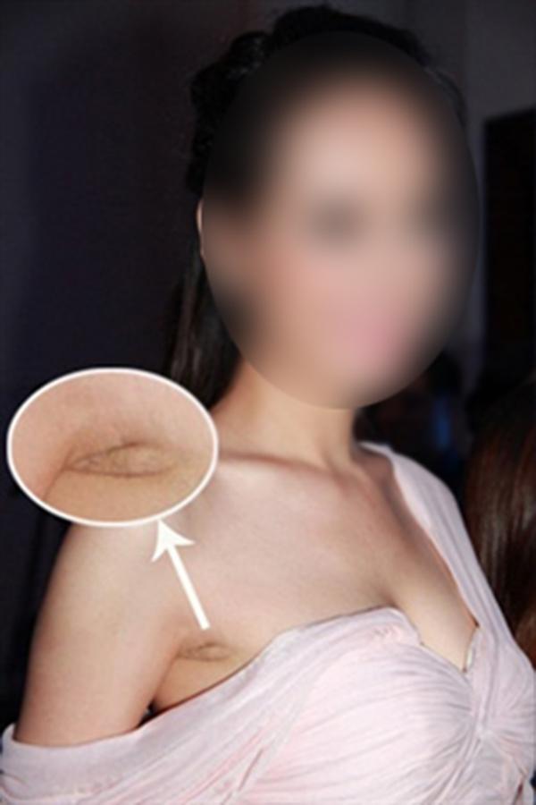 Một số công nghệ nâng ngực buộc phải để lộ vết sẹo dài gần 5cm ở phần nách.