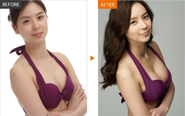 Bầu ngực thẩm mĩ sẽ căng tràn, to và đứng thẳngbất thường, thậm chí vẫn giữ nguyên hình dáng dù bạn nằm xuống.