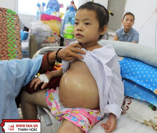8 tuổi, Ái Xuân đã có 4 năm đối diện với căn bệnh ung thư hạch cổ.