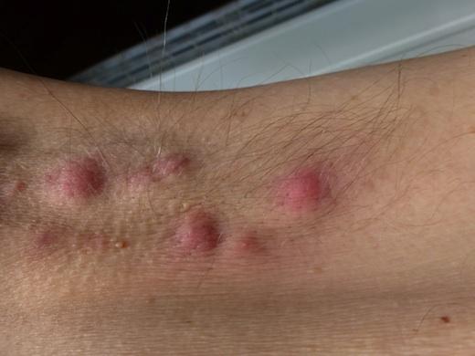 Bệnh nhân viêm tuyến mồ hôi mưng mủ thường có mụn nước ở những vị trí đặc trưng, gây sưng, đau, lẫn mủ... (Ảnh: Internet)