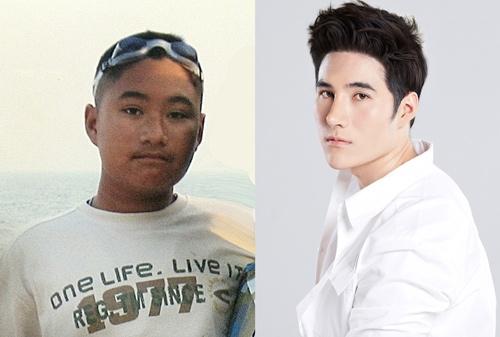 Hình ảnh củaPangpaparn Ounvilai trước và sau phẫu thuật thẩm mĩ.