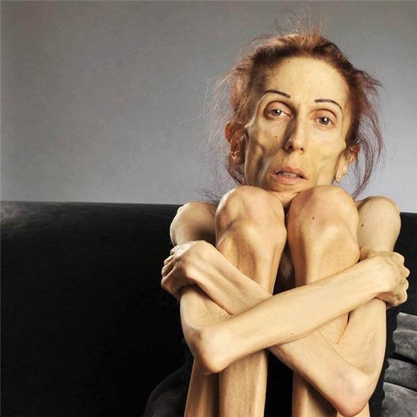 Cơ thể bệnh tật đầy ám ảnh của Rachael (Ảnh: Hành trình Bình phục của Rachael)