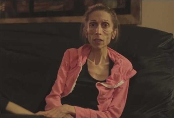 Rachael đã đăng tải lên mạng một đoạn phim về bệnh tình của mình và mong được cộng đồng mạng thương tình giúp đỡ. (Ảnh: YouTube)