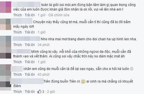 """Các fan không quên động viên tinh thần nữ ca sĩrằng: """"có những vết sẹo ấy mới có được Tóc Tiên của ngày hôm nay"""". - Tin sao Viet - Tin tuc sao Viet - Scandal sao Viet - Tin tuc cua Sao - Tin cua Sao"""