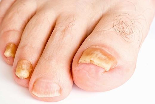 Bạn phải đối diện với những ngón chân rỉ mủ. (Ảnh: Internet)