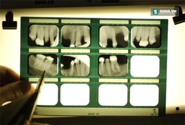 Hàm răng tiết lộ nhiều điều về sức khỏe của bạn