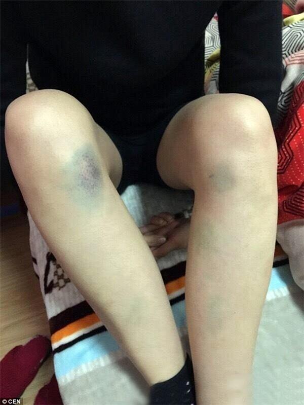Tay chân cô Lý bầm tím vì bị gia đình chồng bạo hành. (Ảnh: Internet)