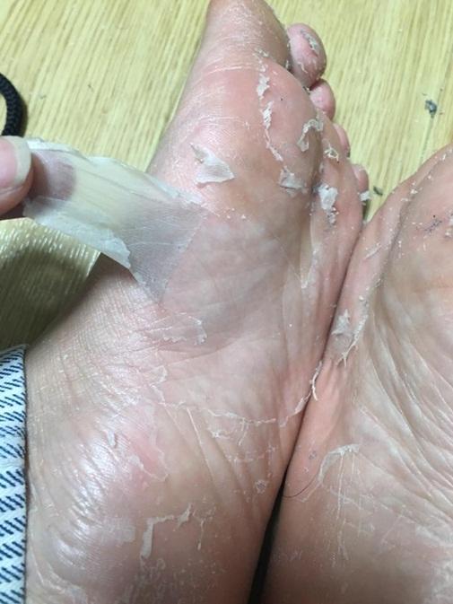 Cận cảnh quá trình lột da của một con rắn người