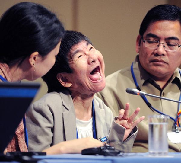 Shinobu Sakamoto - một trong những nạn nhân mắc bệnh Minamata.