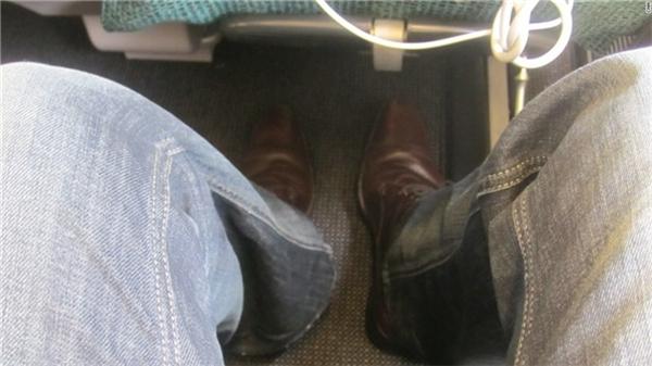 Rung đùi. Rung đùi không phải là hiện tượng quá phổ biến, nhưng vẫn rất khó chịu nếu đang ở trong máy bay, và trên một độ cao nhất định.
