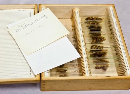 Chiếc hộp chứa 42 mẩu não của Einstein tại Philadenphia vào năm 2011