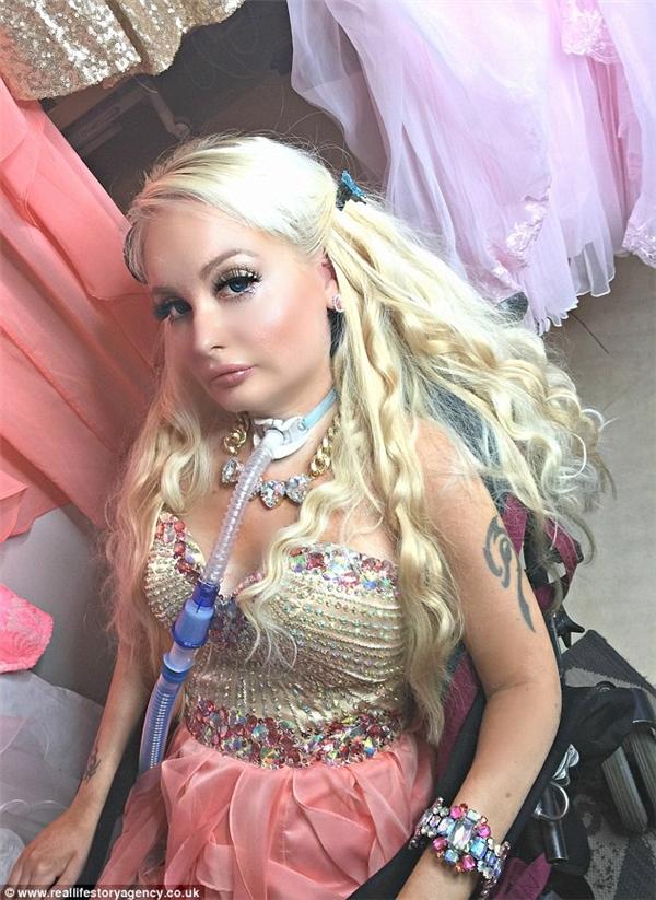 Barbie phiên bản người thật bị bại liệt đầu tiên trên thế giới