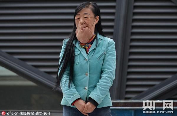 Người phụ nữ này có họ là Lưu, 47 tuổi, có một khối u rất lớn trên mặt khiến cho phần mặt dưới biến dạng, chảy xệ xuống tận ức.