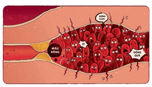 Do việc bắt chéo chân gây đứt mạch máu nên máu đông cục rất dễ xuất hiện. (Ảnh: Internet)