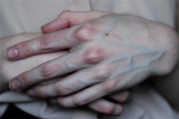 Máu trong tĩnh mạch không có màu xanh. Khi nhìn vào những mạch máu bên dưới làn da, chúng ta thấy chúng có màu xanh, nhưng thực ra đó là màu đỏ đậm do thiếu oxy. Sở dĩ chúng ta thấy chúng có màu xanh là vì bình thường ánh sáng (có hai màu xanh và đỏ) chiếu vào da và xuyên vào máu, rồi tùy vào chiều dài bước sóng mà chúng sẽ bị hấp thụ hoặc phân tán và phản chiếu lại mắt. Nhưng vì ánh sáng xanh không chiếu vào da sâu bằng màu đỏ nên nó dễ bị phân tán và phản chiếu lên mắt hơn. Chính vì thế với những đường tĩnh mạch nằm ở độ sâu 0.5mm trở lên, chúng ta nhìn thấy chúng có màu xanh.