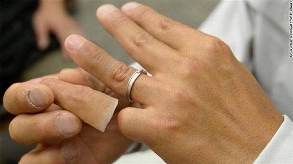 """Một cựu Yakuza """"khoe"""" ngón út làm giả bằng nhựa silicon."""