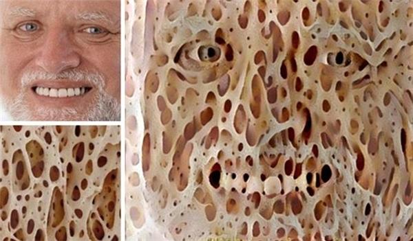 Khuôn mặt biến dạng như zoombie khi kết hợp hình ảnh một người đàn ông và bọt biển.