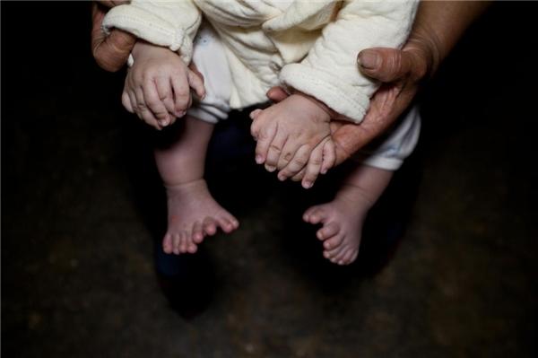 Tổng cộng béHonghongcó tới 31 ngón tay và ngón chân tất cả. (Ảnh: Internet)